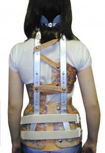 Conflit antérieur de la hanche Corset10