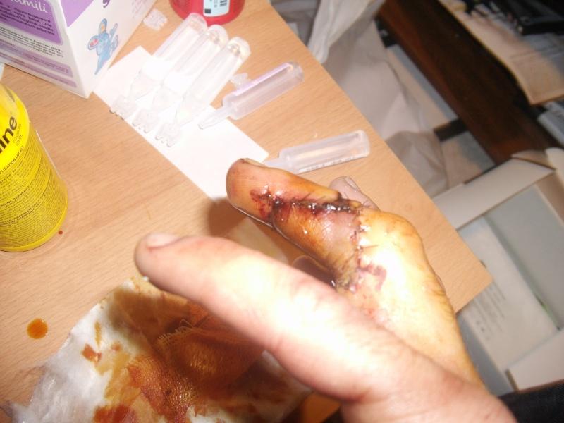 petits accident de la vie courante Dscf2413
