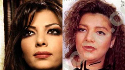 Photos des artistes avant et après Ahalah10