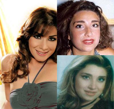 Photos des artistes avant et après Alin-k10