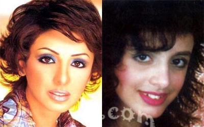 Photos des artistes avant et après Angham10