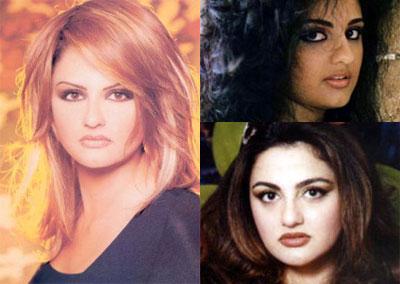 Photos des artistes avant et après Baskan10