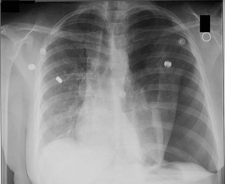 Two forgotten signs in pneumothorax 733px-10