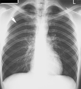 Two forgotten signs in pneumothorax Pneumo10