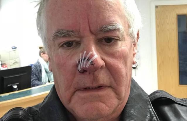 Nigel Glockler (batteur de SAXON) attaqué par un chien ... Nigelg10