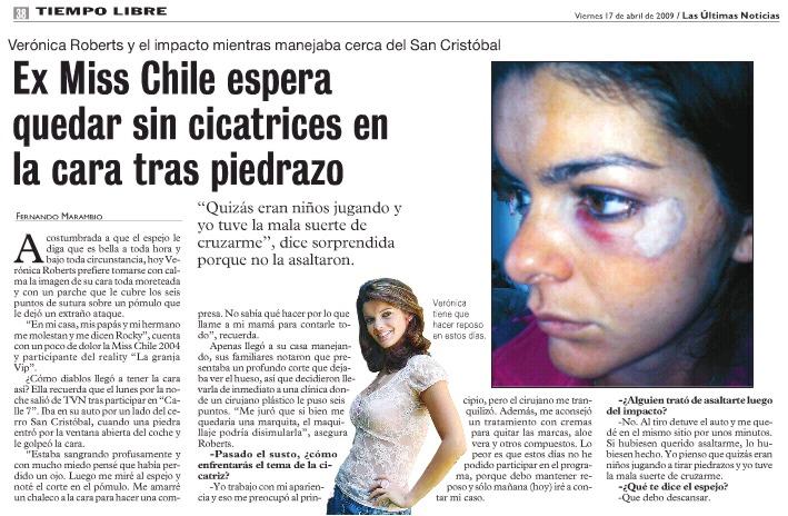 [Vero Roberts]  Ex Miss Chile espera quedar sin cicatrices en la cara tras piedrazo Veroro10