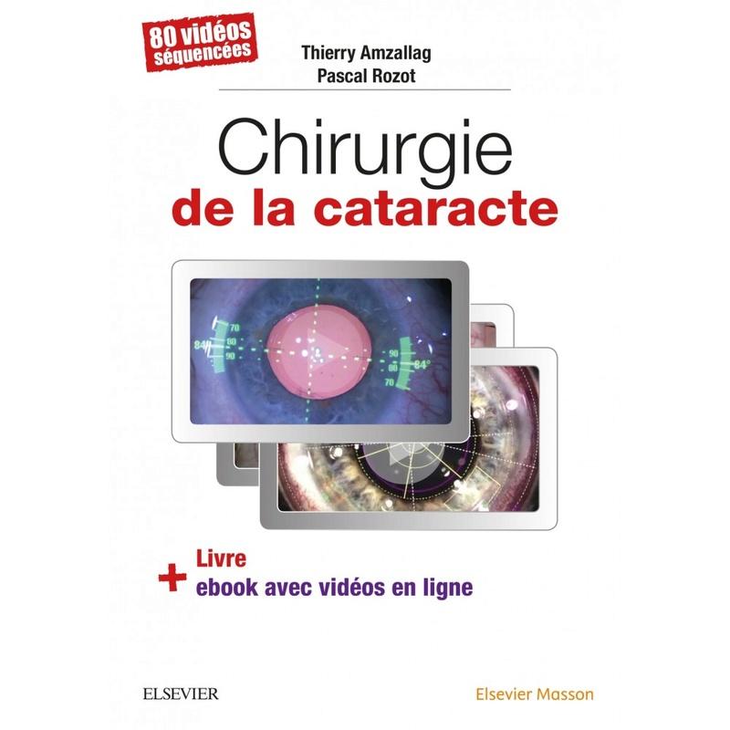 (nouveau) Chirurgie de la cataracte // Date de Parution 28/02/2018 // Chirur11