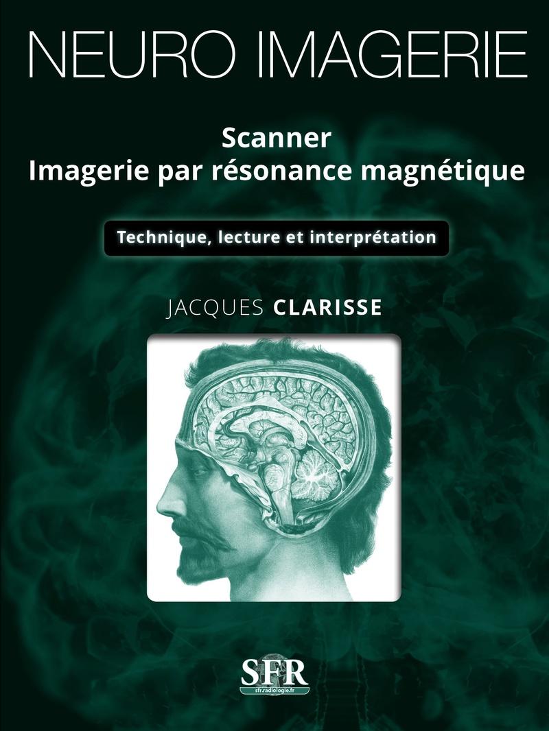 [octobre 2017] NEURO-IMAGERIE SCANNER IMAGERIE PAR RESONANCE MAGNETIQUE Couv_n10