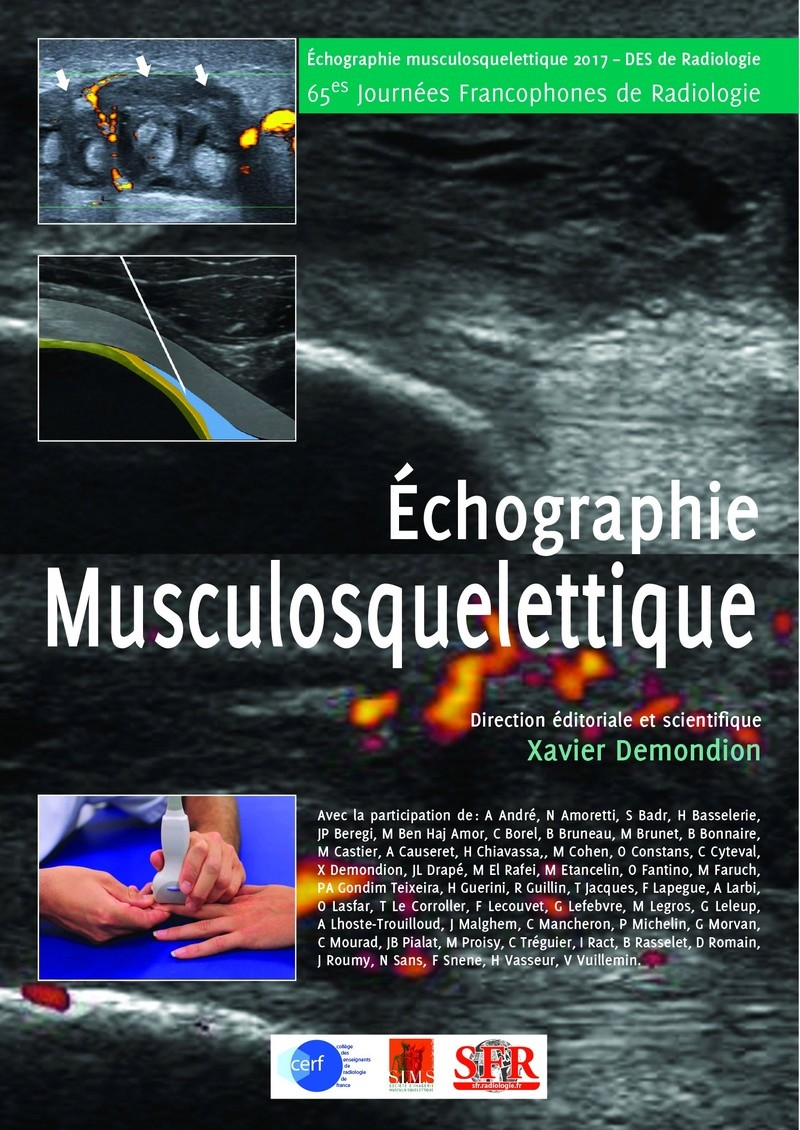 Exclusif : ECHOGRAPHIE MUSCULOSQUELETTIQUE SFR octobre 2017 Couver10
