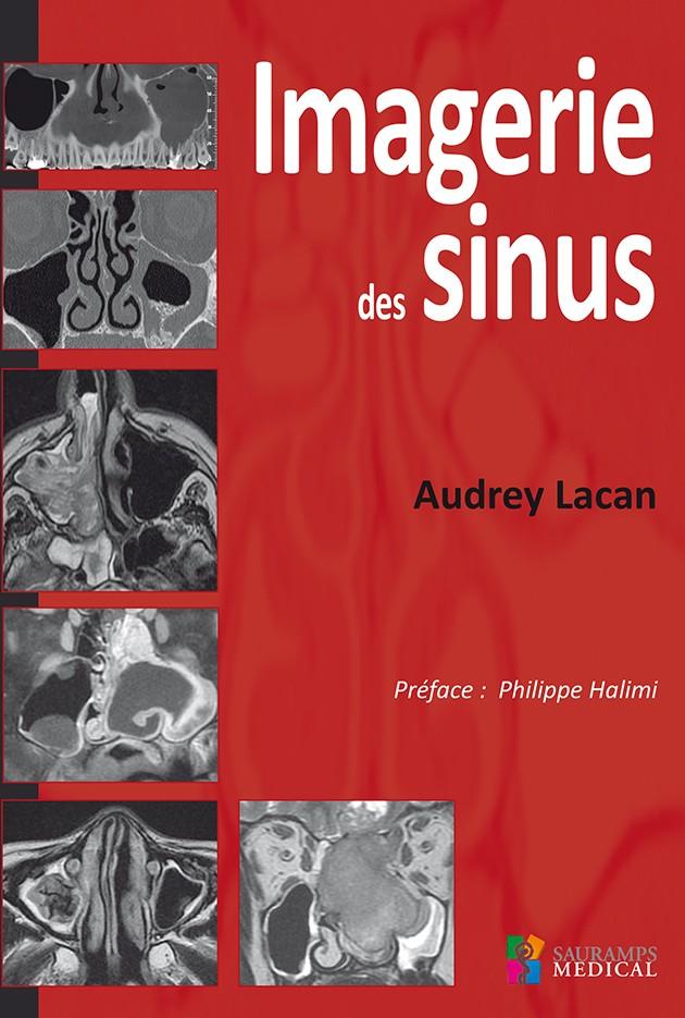 imagerie des sinus (Date de parution : 22 septembre 2016) Imager10