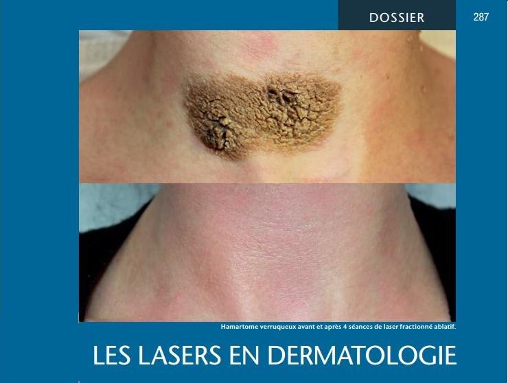 les lasers en dermatologie Mg_20110