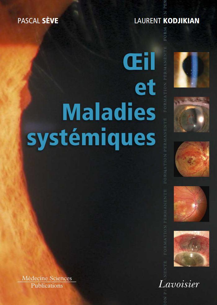 oeil et maladies systémiques Oeil_e10