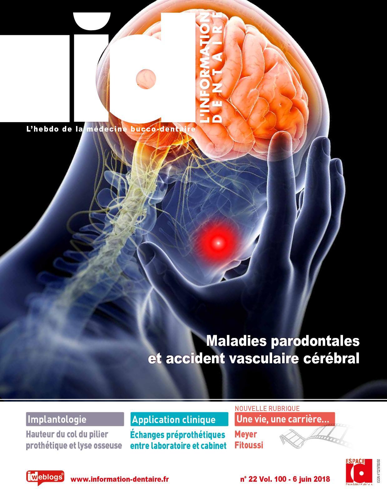 Information Dentaire ID n°22 Vol.100 - 6 Juin 2018 P111