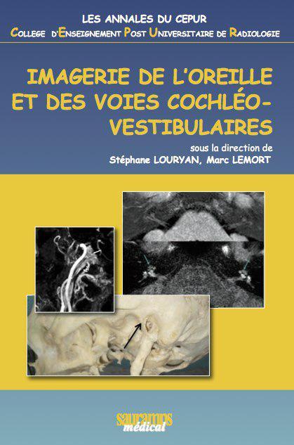 exclusif :  IMAGERIE DE L'OREILLE ET DES VOIES COCHLÉOVESTIBULAIRES Photo_10