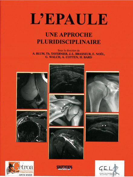 exclusif : L'épaule : Une approche pluridisciplinaire  Photo_19