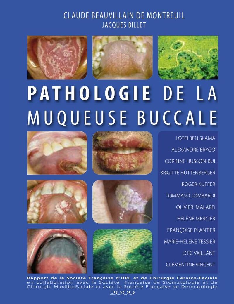 Pathologie de la muqueuse buccale  Rappor10