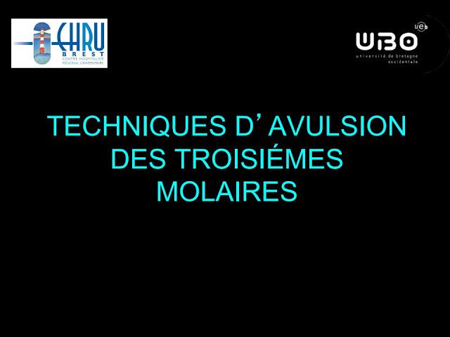 Techniques d'avulsion des troisièmes molaires  Techni10