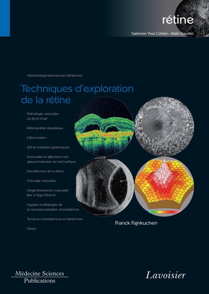 Techniques dexploration de la rétine volume 1  Techni11