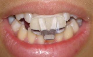 Cas cliniques : Douleurs et troubles temporo mandibulaires [Orthodontie] Dsc00810