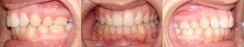 Cas cliniques : Douleurs et troubles temporo mandibulaires [Orthodontie] Intra111