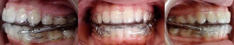 Cas cliniques : Douleurs et troubles temporo mandibulaires [Orthodontie] Pul111