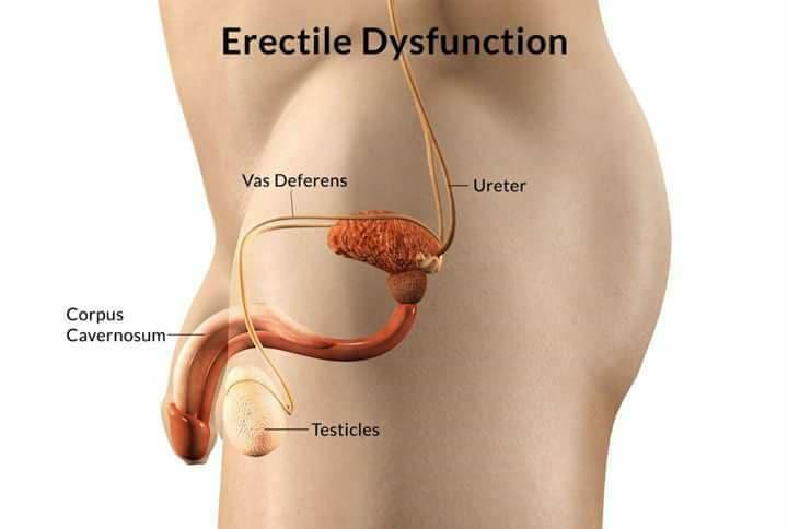 Ano ang Erectile Dysfunction Erelti10