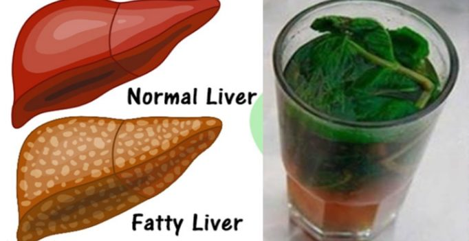 What are some herbal treatments for a fatty liver? Safe_i10
