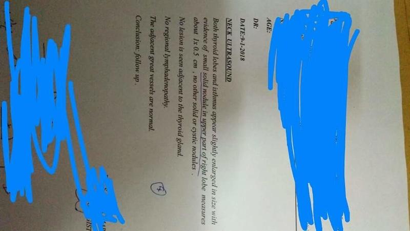 قصور الغدة الدرقية  Receiv11