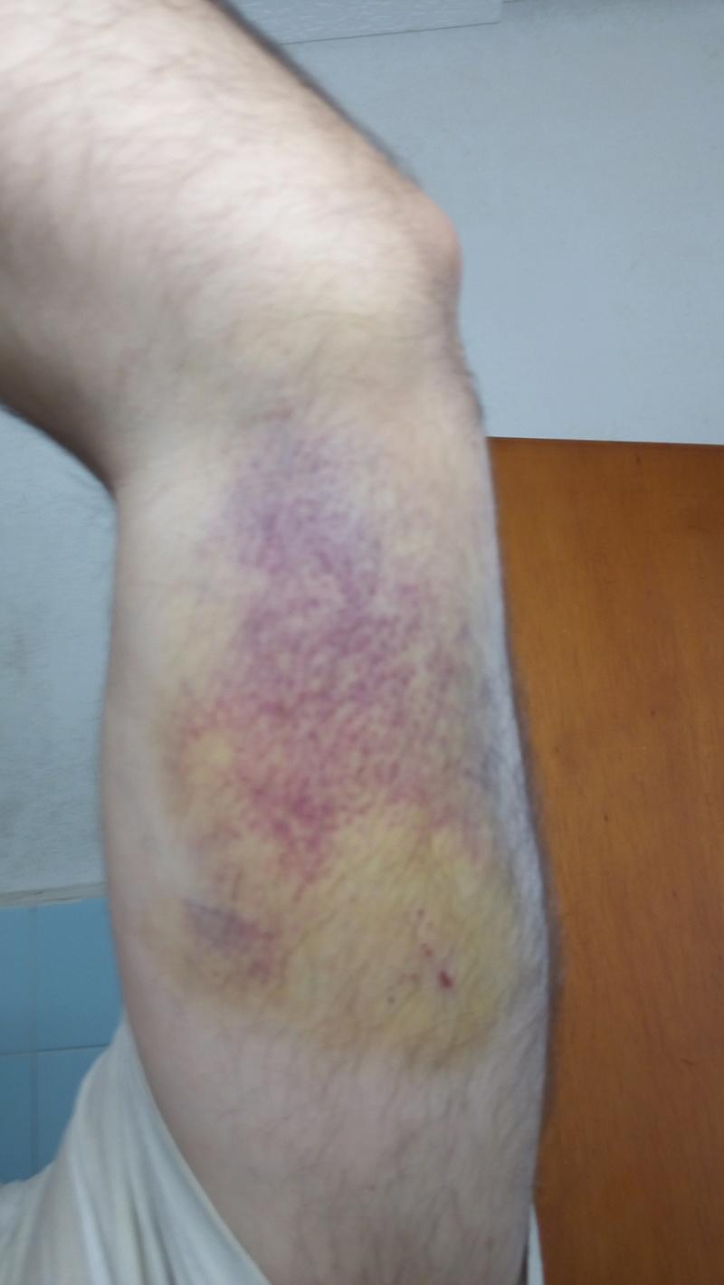 [Accident] Chute d'un échafaudage Img_2014