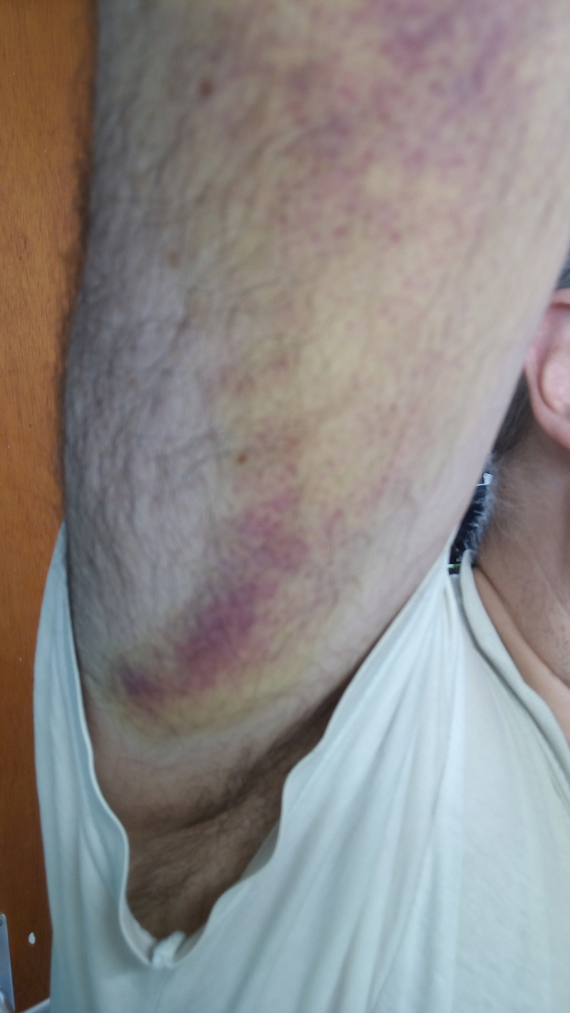 [Accident] Chute d'un échafaudage Img_2015