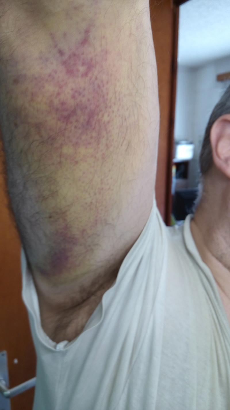 [Accident] Chute d'un échafaudage Img_2016
