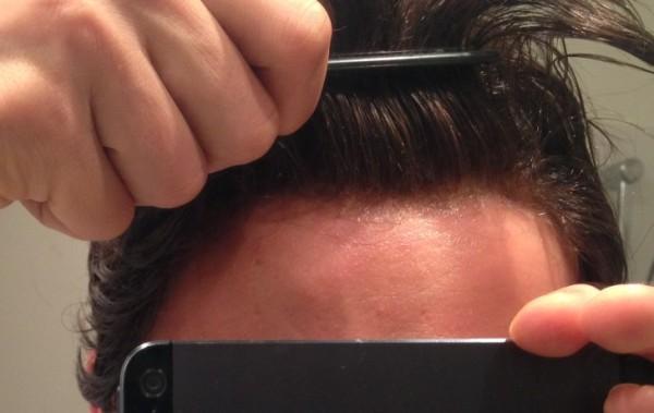 Photo ligne frontale récente Lf10