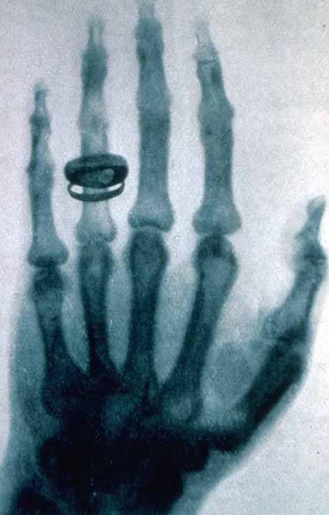 Bonjour / Bonsoir de Décembre  - Page 4 X-ray_10