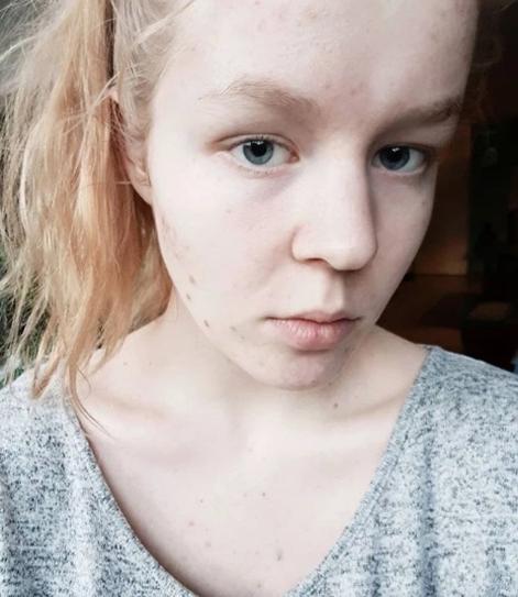 white female suicides 2019-20 Screen49