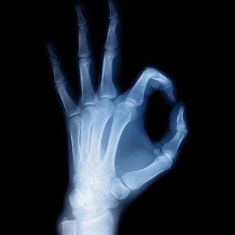 Магическая Медицина-Восстановление костной системы и кальция. 8093a510