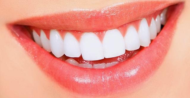 اسنان نزيف