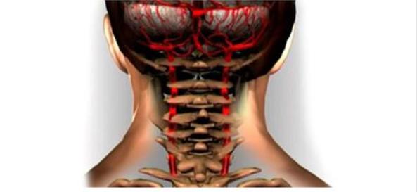 Шейный остеохондроз и гипертония Uee10