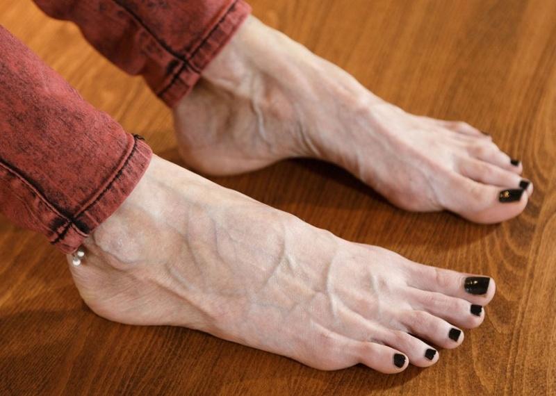Préférez-vous les pieds avec... 32707011