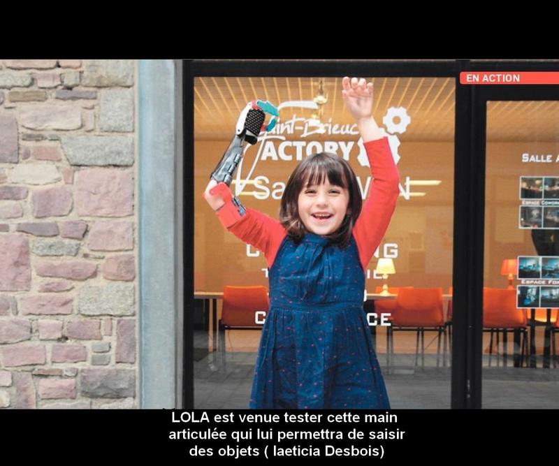 Saint-Brieuc. Ils offrent à Lola, 5 ans, une prothèse de main imprimée en 3D C10
