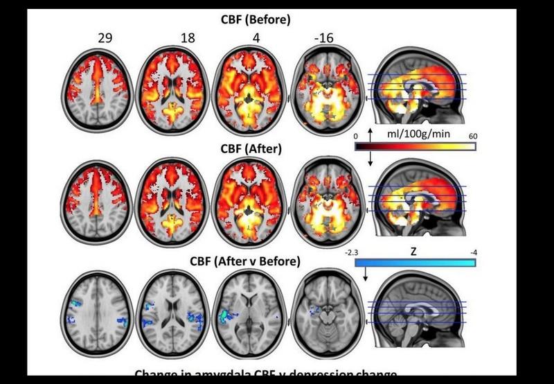 Des champignons hallucinogènes pour redémarrer le cerveau dépressif Sans_121