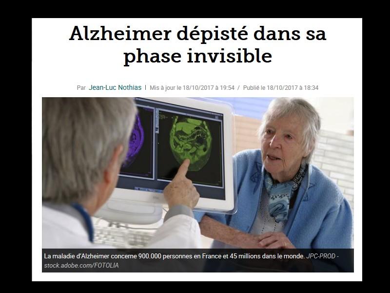 Alzheimer dépisté dans sa phase invisible Sans_t86