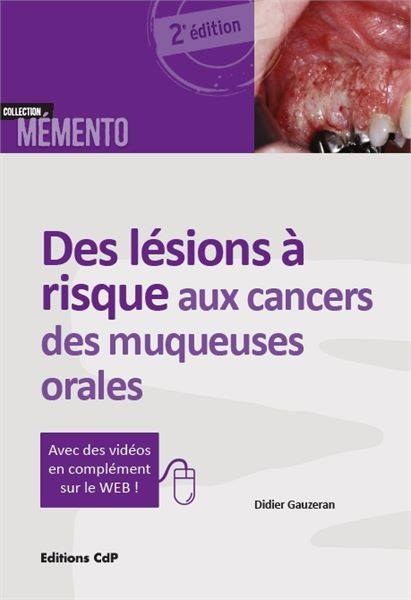 Des lésions à risque aux cancers des muqueuses orales 22894210