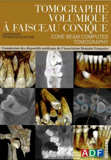 Tomographie volumique à faisceau conique ou cone beam computed tomography : justification, optimisation & lecture 28870510