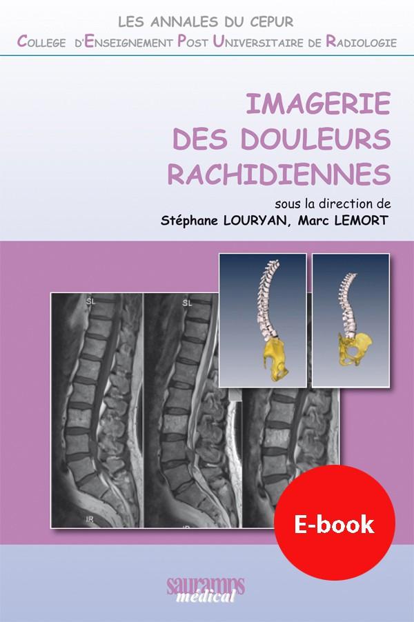 IMAGERIE DES DOULEURS RACHIDIENNES // SAURAMPS MEDICAL Couv10