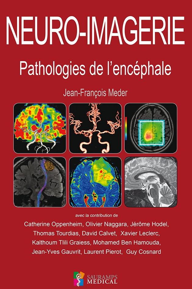 NEURO-IMAGERIE - PATHOLOGIES DE L'ENCÉPHALE 2016 Couv_m10