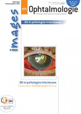 images en ophtalmologie décembre 2017 Hight_19