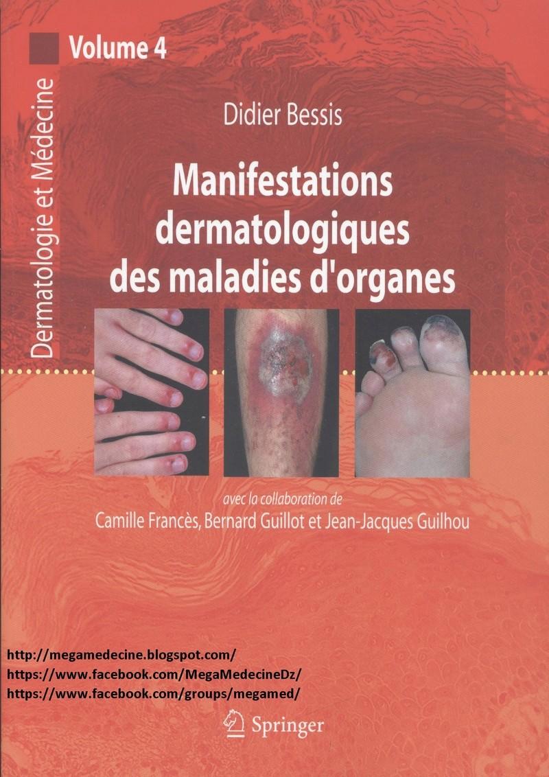 Livres Médicales - Manifestations dermatologiques des maladies d'organes Manife10
