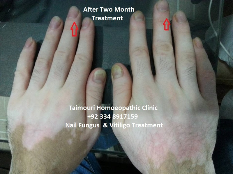Skin diseases , nail infection, Chumbal ,   2_mont10