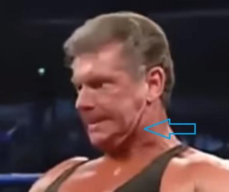 LO QUE NO SABÍAS DE LA WWE (Lucha Libre) - Página 4 Hi-ped10