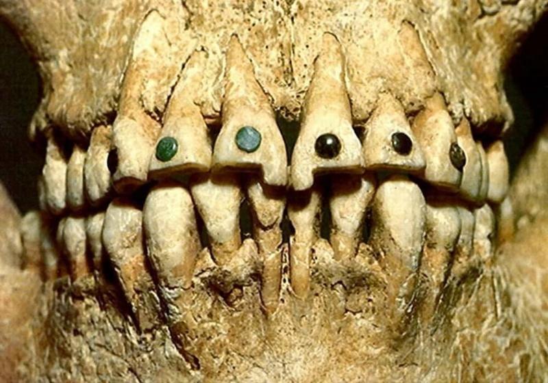 Los dentistas romanos hace 2000 años 24312910